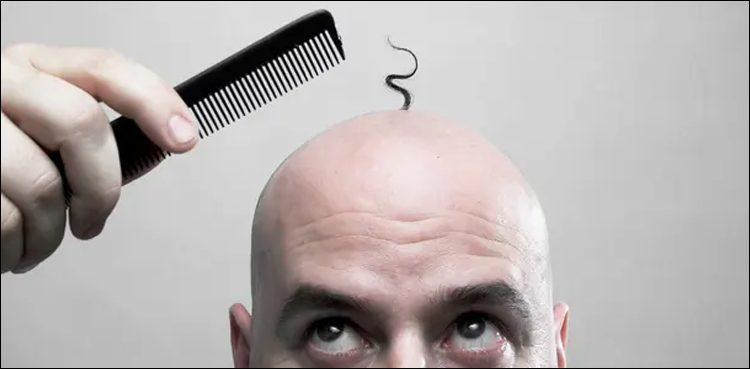 Experts have Discovered the Main Cause of Baldness